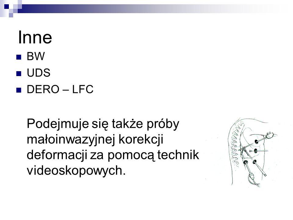 Inne BW. UDS. DERO – LFC.