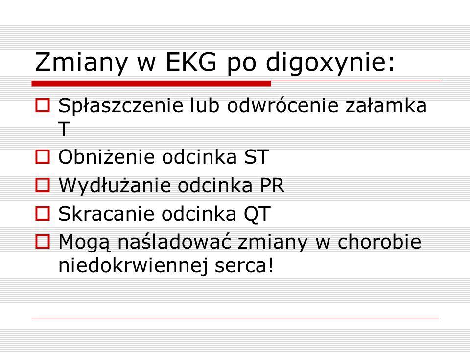 Zmiany w EKG po digoxynie: