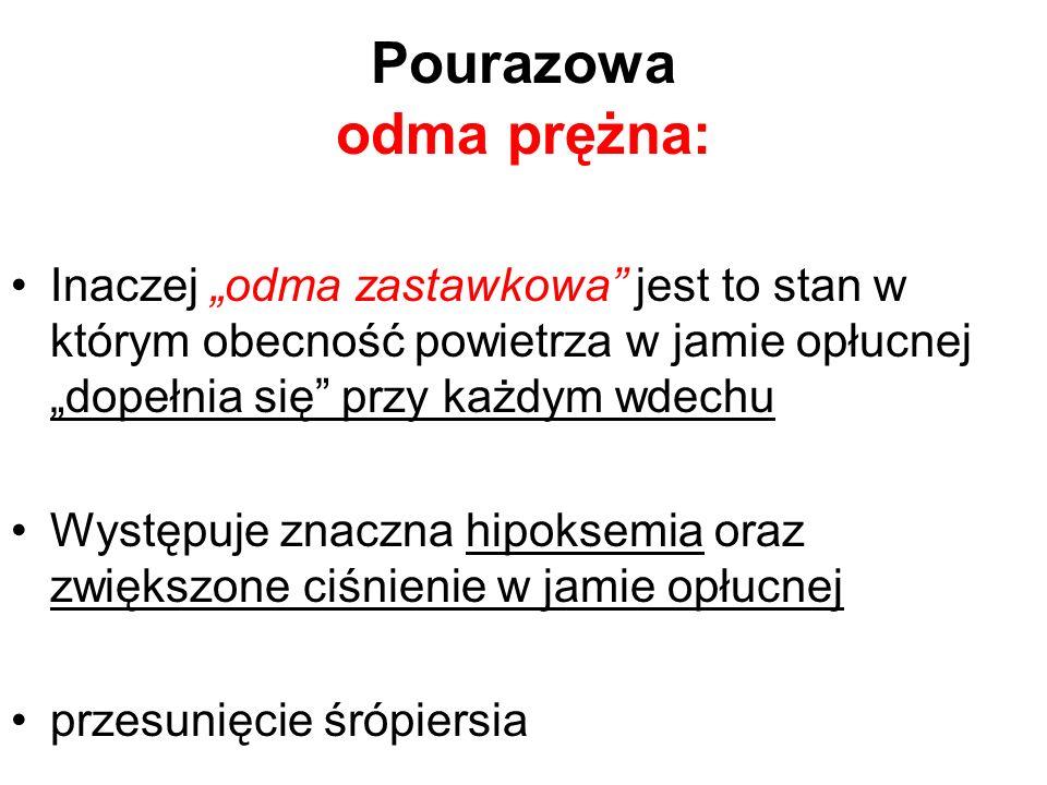 Pourazowa odma prężna: