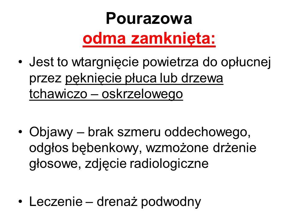 Pourazowa odma zamknięta: