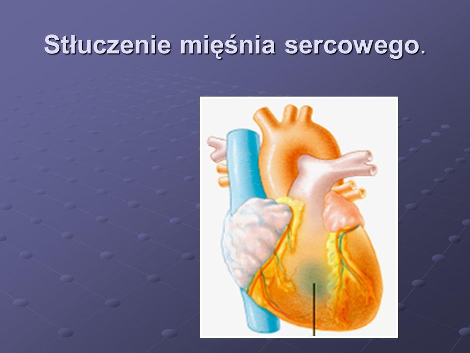 Stłuczenie mięśnia sercowego.