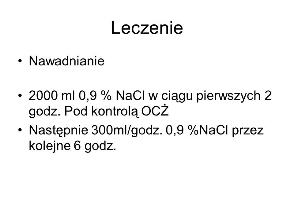 Leczenie Nawadnianie. 2000 ml 0,9 % NaCl w ciągu pierwszych 2 godz.