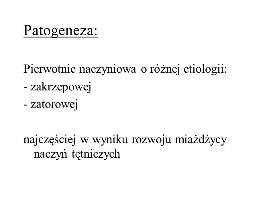 Patogeneza: Pierwotnie naczyniowa o różnej etiologii: - zakrzepowej