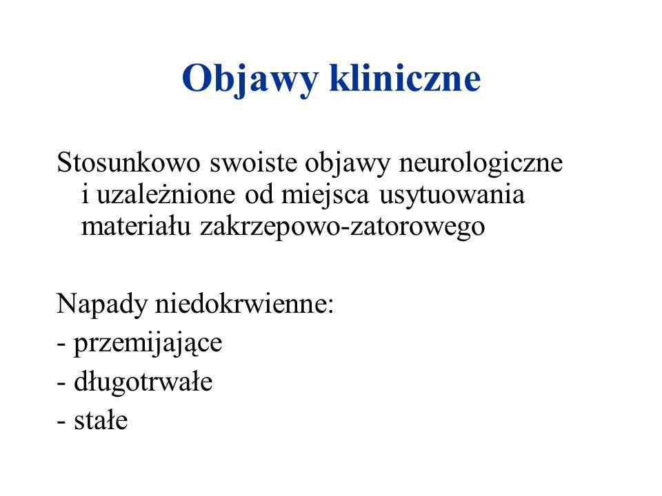 Objawy kliniczneStosunkowo swoiste objawy neurologiczne i uzależnione od miejsca usytuowania materiału zakrzepowo-zatorowego.