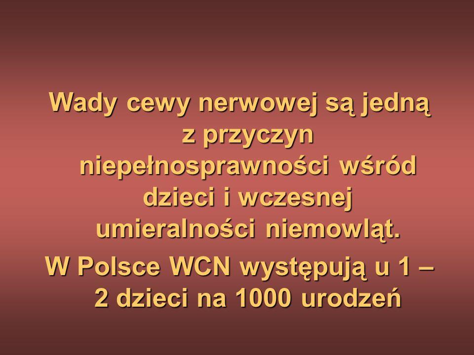W Polsce WCN występują u 1 – 2 dzieci na 1000 urodzeń