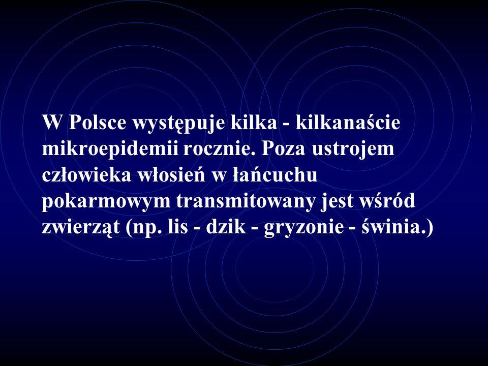W Polsce występuje kilka - kilkanaście mikroepidemii rocznie
