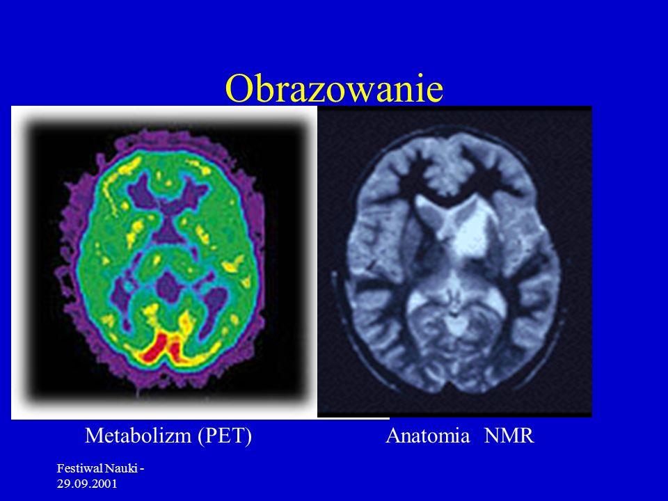 Obrazowanie Metabolizm (PET) Anatomia NMR Festiwal Nauki - 29.09.2001