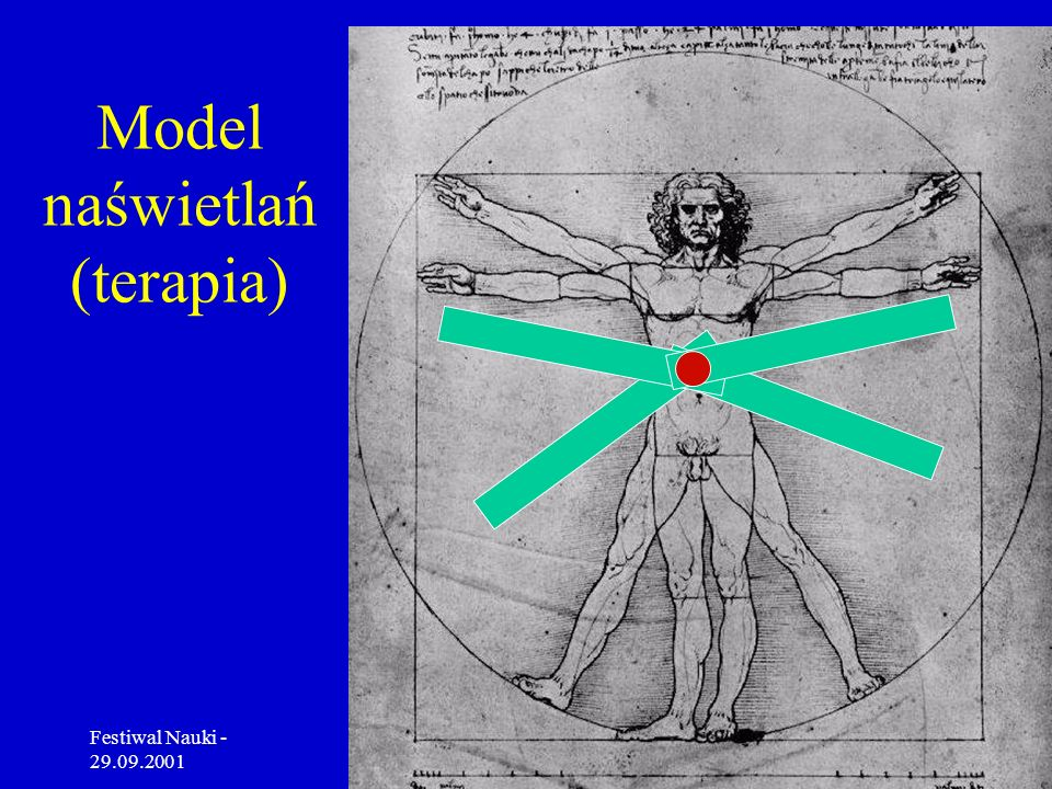 Model naświetlań (terapia)