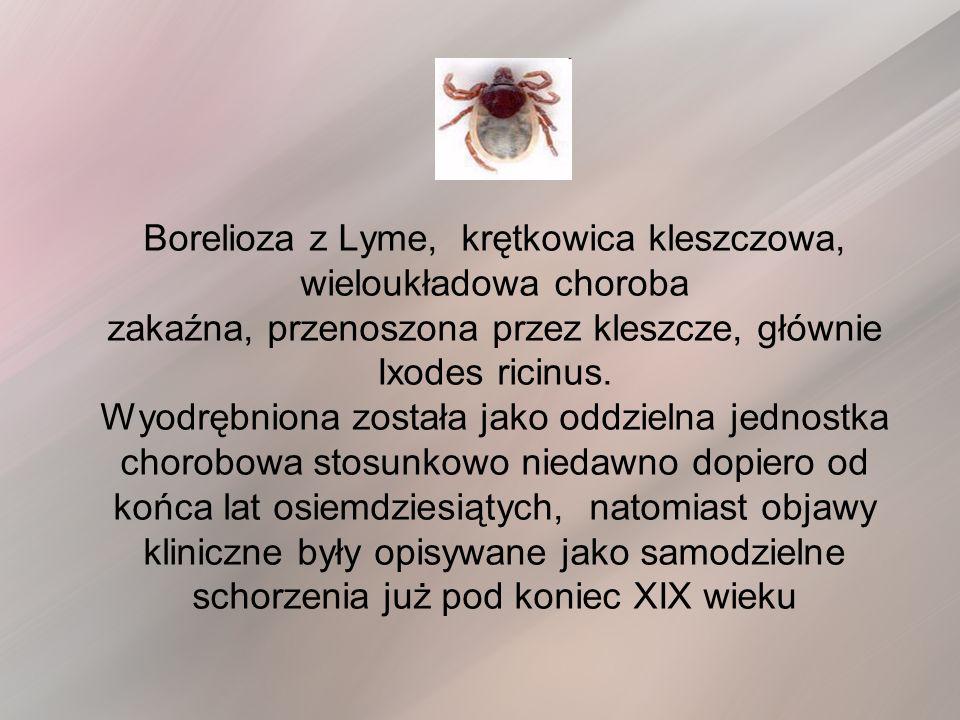 Borelioza z Lyme, krętkowica kleszczowa, wieloukładowa choroba zakaźna, przenoszona przez kleszcze, głównie Ixodes ricinus. Wyodrębniona została jako oddzielna jednostka chorobowa stosunkowo niedawno dopiero od końca lat osiemdziesiątych, natomiast objawy kliniczne były opisywane jako samodzielne schorzenia już pod koniec XIX wieku