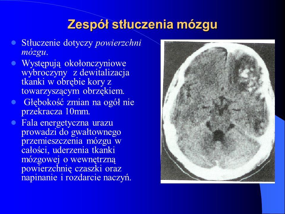 Zespół stłuczenia mózgu