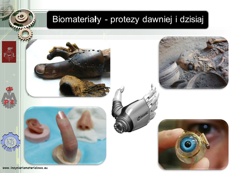 Biomateriały - protezy dawniej i dzisiaj