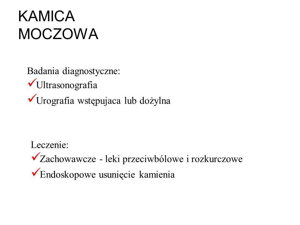 KAMICA MOCZOWA Badania diagnostyczne: Ultrasonografia