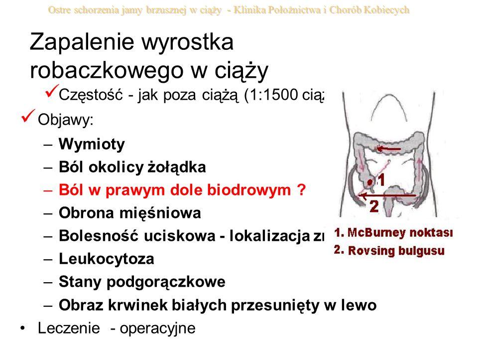 Zapalenie wyrostka robaczkowego w ciąży