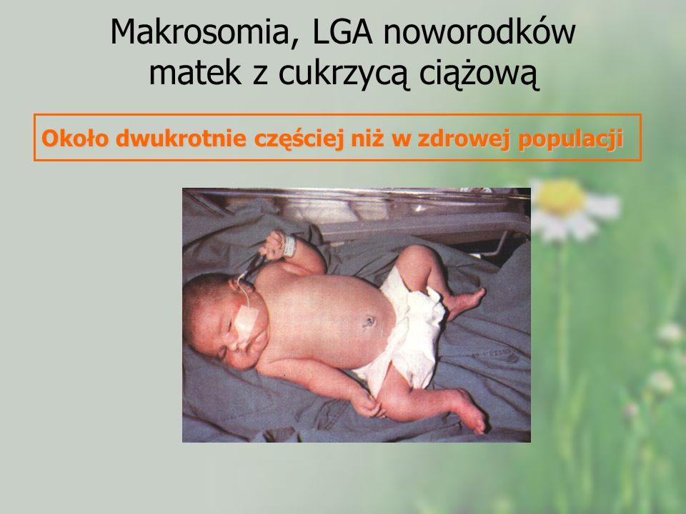 Makrosomia, LGA noworodków matek z cukrzycą ciążową