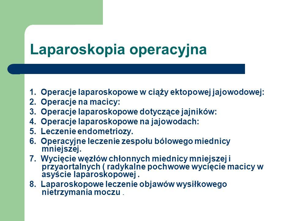 Laparoskopia operacyjna