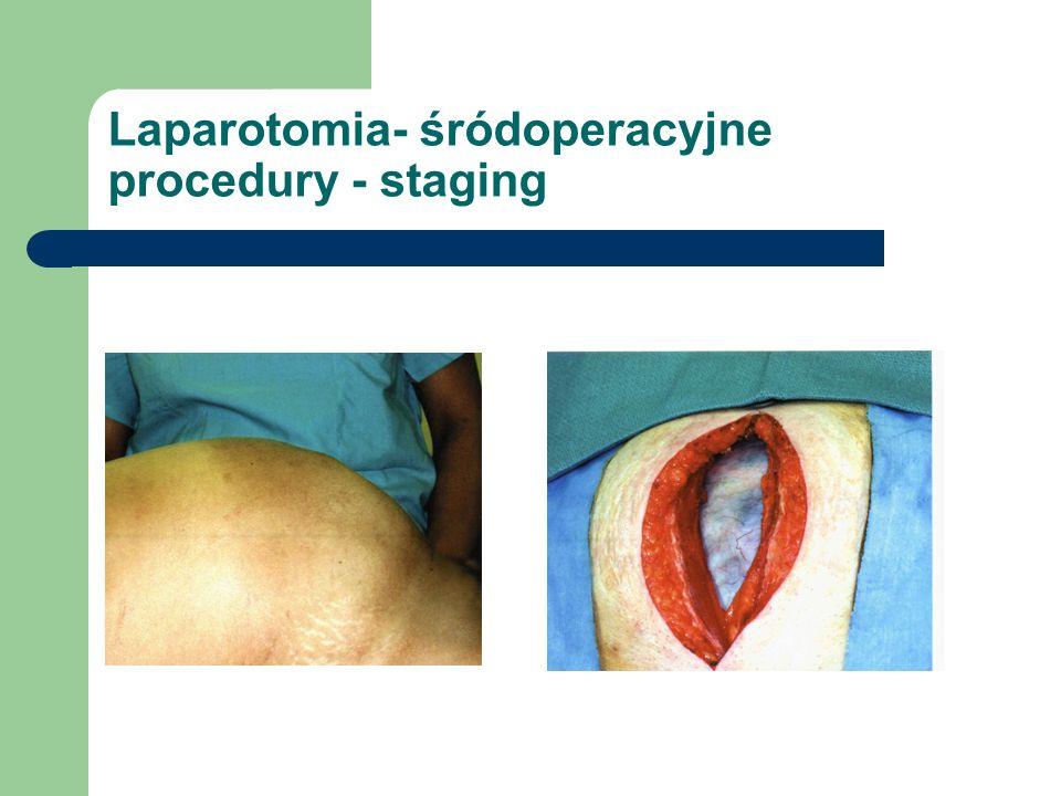 Laparotomia- śródoperacyjne procedury - staging
