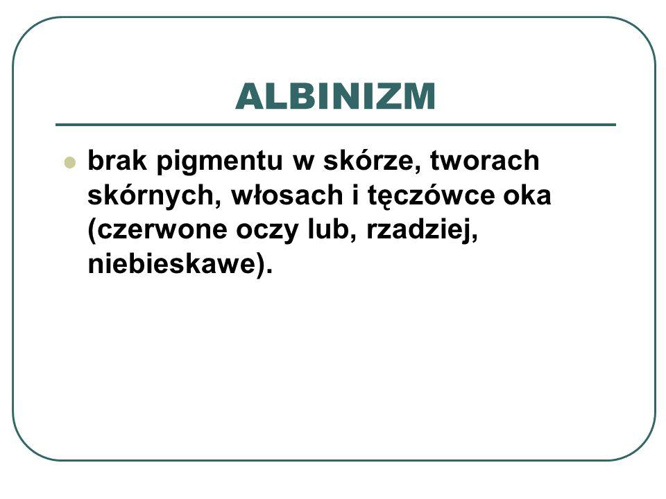 ALBINIZM brak pigmentu w skórze, tworach skórnych, włosach i tęczówce oka (czerwone oczy lub, rzadziej, niebieskawe).