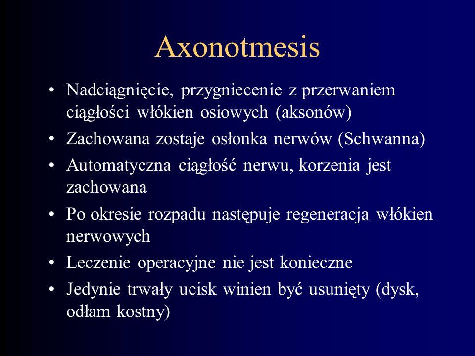 Axonotmesis Nadciągnięcie, przygniecenie z przerwaniem ciągłości włókien osiowych (aksonów) Zachowana zostaje osłonka nerwów (Schwanna)