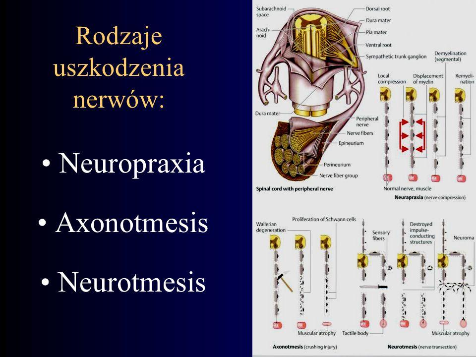 Rodzaje uszkodzenia nerwów: