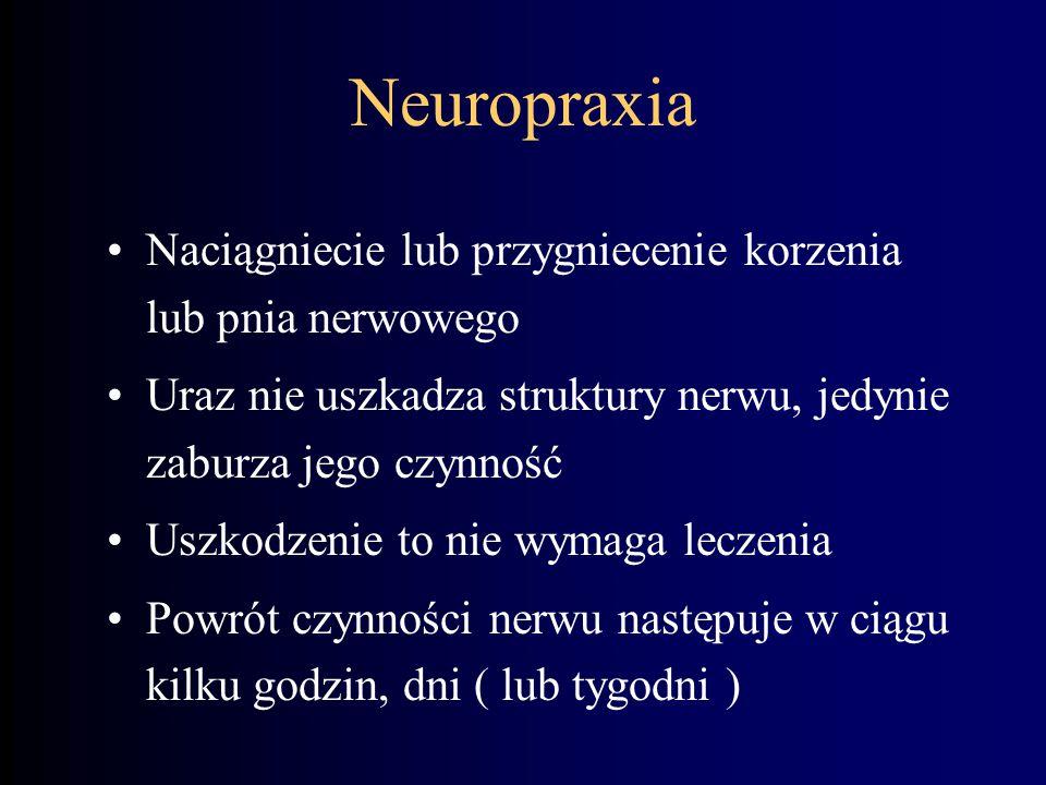 Neuropraxia Naciągniecie lub przygniecenie korzenia lub pnia nerwowego