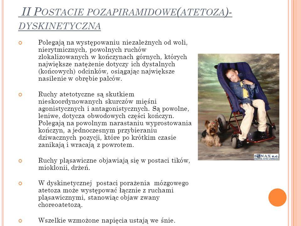 II Postacie pozapiramidowe(atetoza)- dyskinetyczna