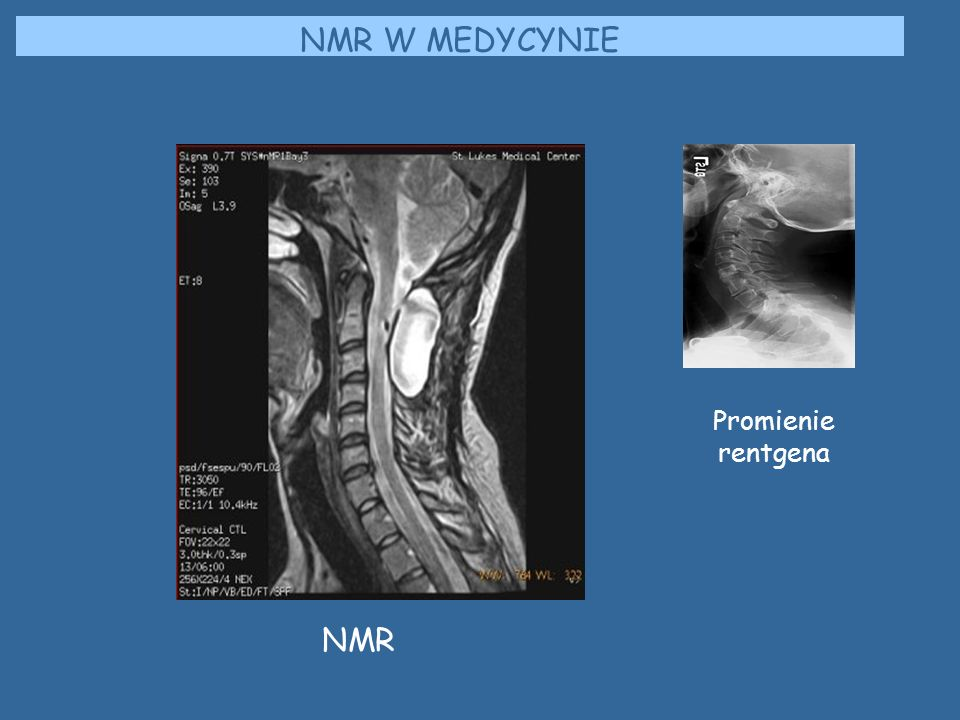 NMR W MEDYCYNIE Promienie rentgena NMR
