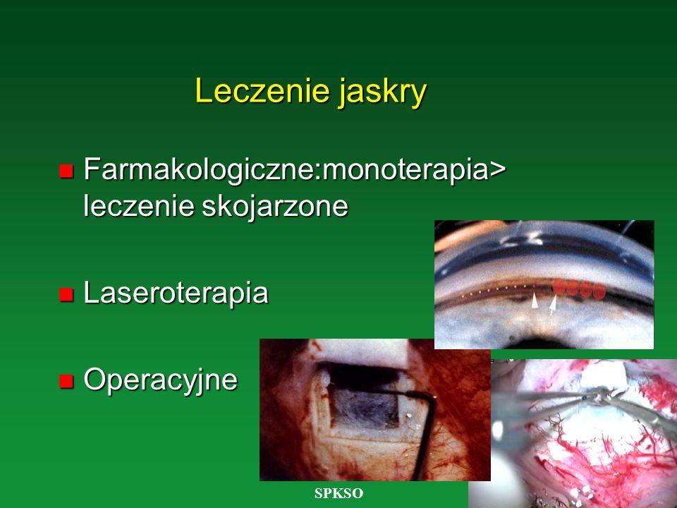 Leczenie jaskry Farmakologiczne:monoterapia> leczenie skojarzone