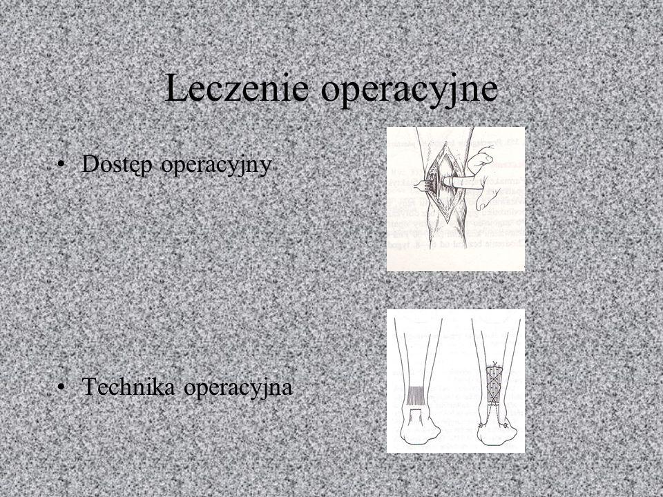 Leczenie operacyjne Dostęp operacyjny Technika operacyjna