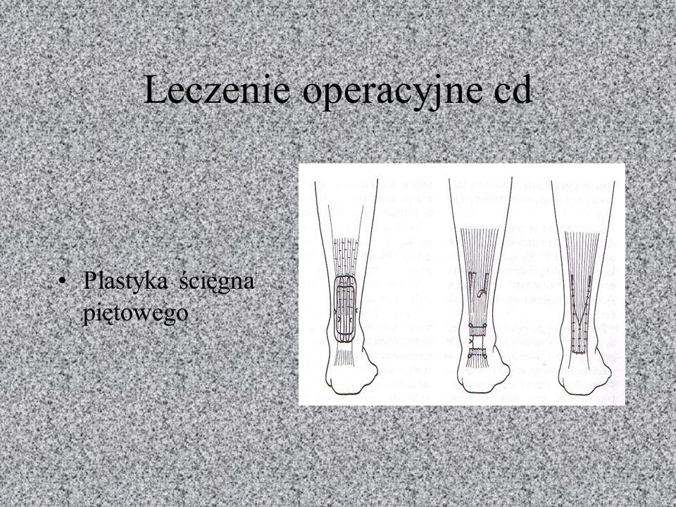 Leczenie operacyjne cd