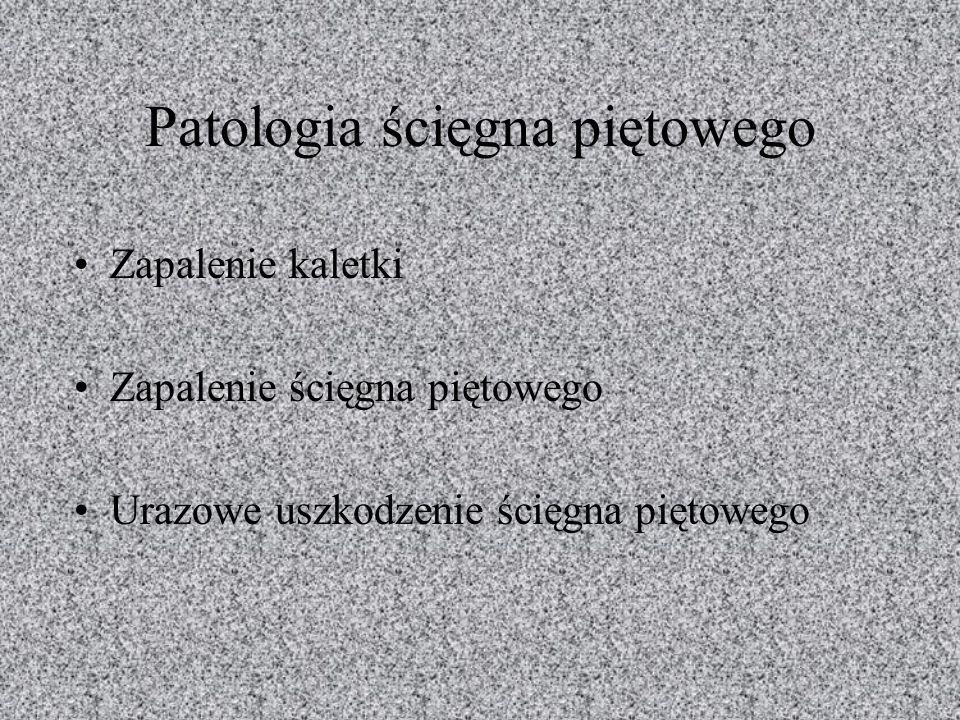 Patologia ścięgna piętowego