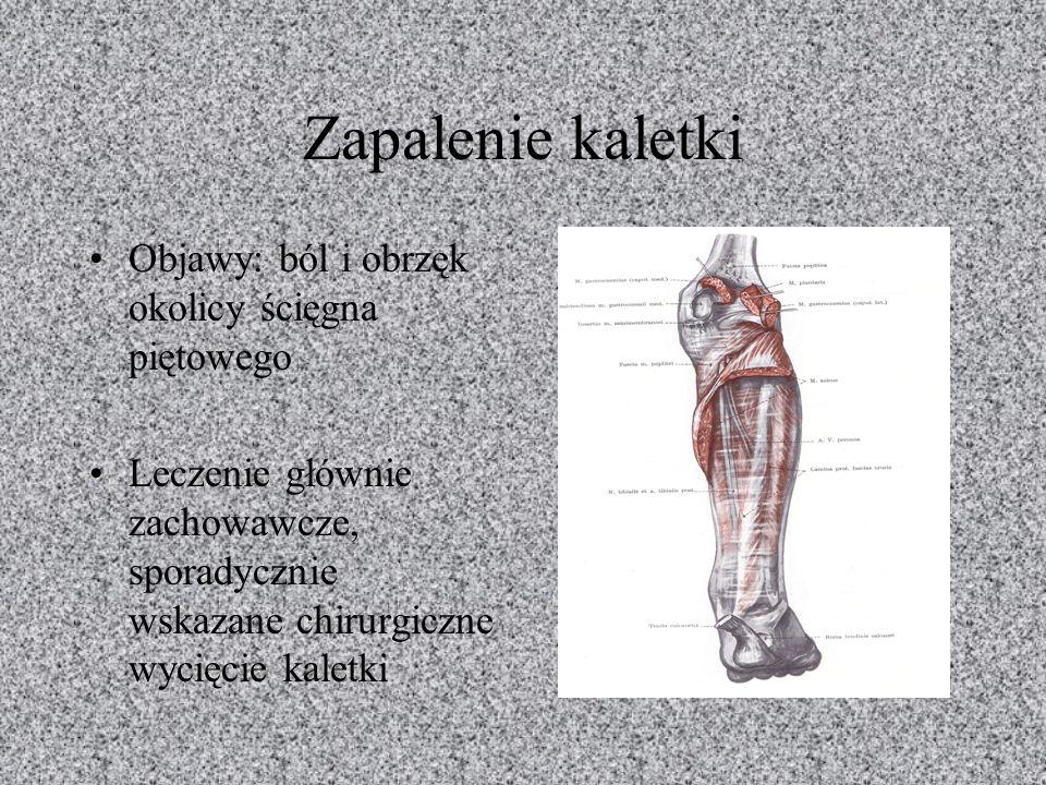 Zapalenie kaletki Objawy: ból i obrzęk okolicy ścięgna piętowego