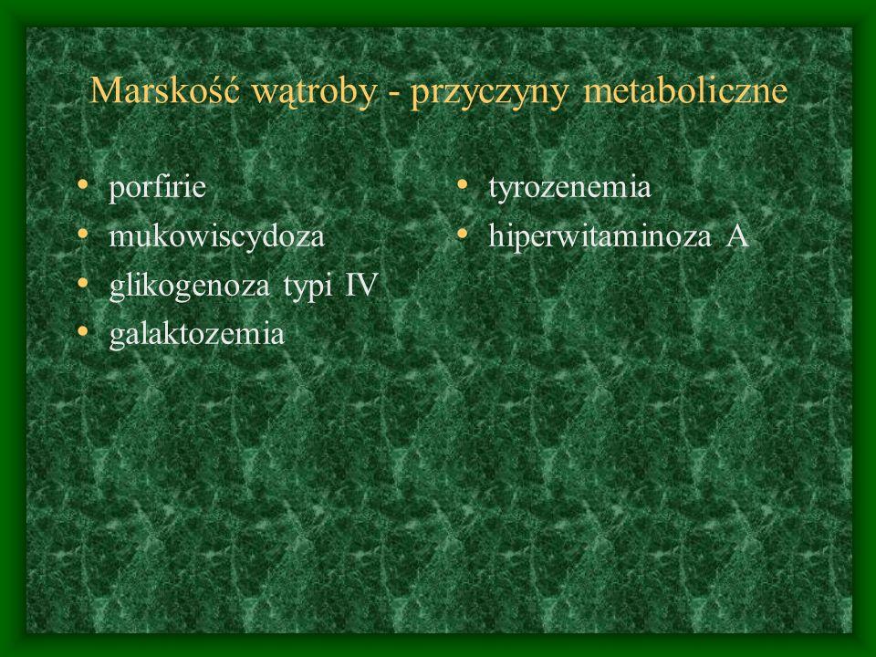 Marskość wątroby - przyczyny metaboliczne