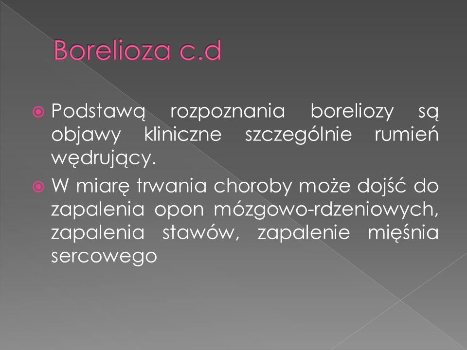 Borelioza c.d Podstawą rozpoznania boreliozy są objawy kliniczne szczególnie rumień wędrujący.