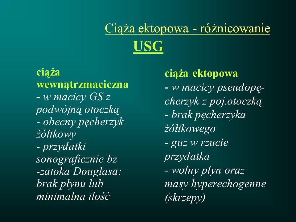 Ciąża ektopowa - różnicowanie USG