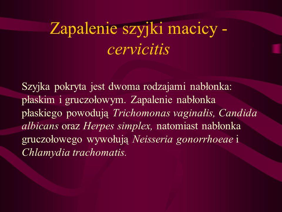 Zapalenie szyjki macicy - cervicitis