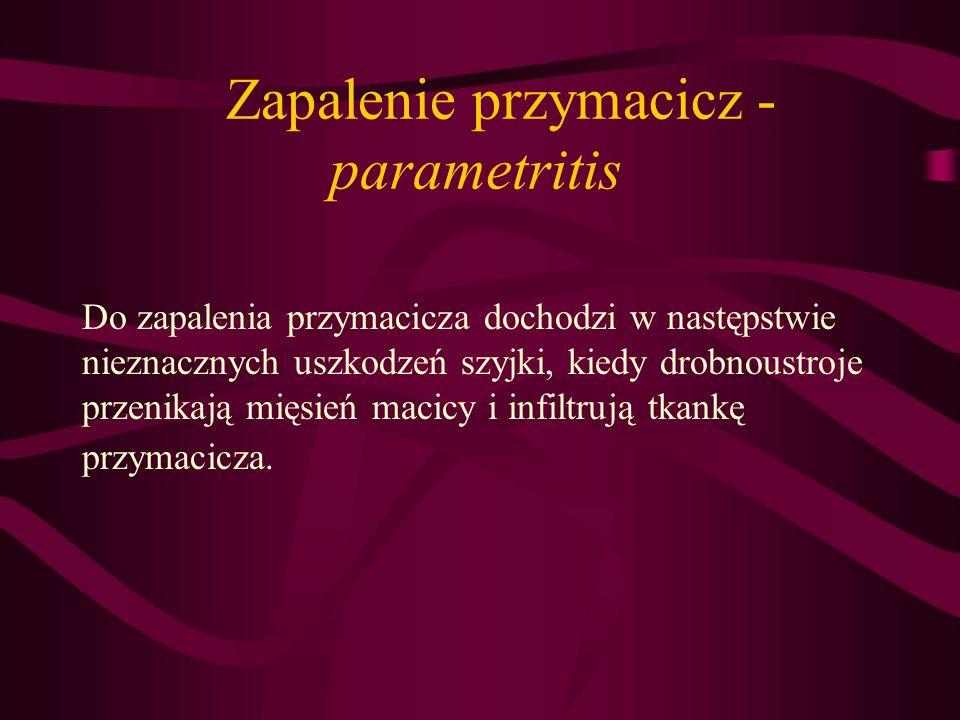 Zapalenie przymacicz - parametritis