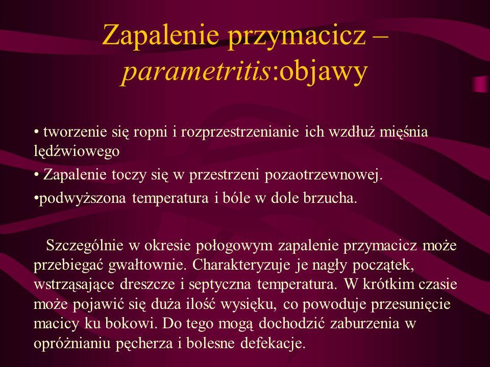 Zapalenie przymacicz – parametritis:objawy