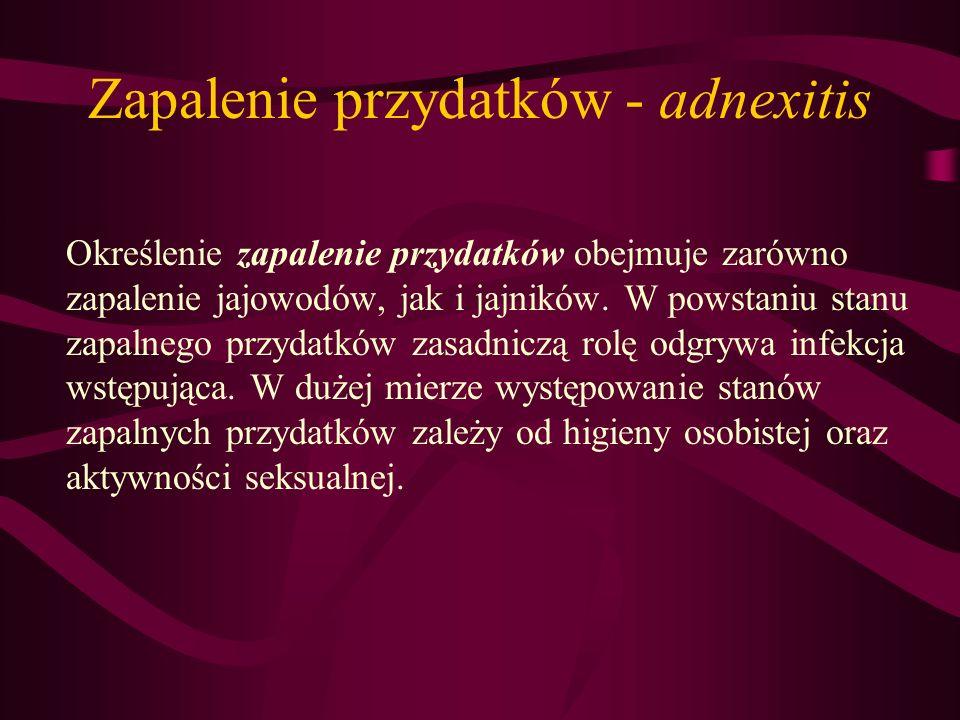 Zapalenie przydatków - adnexitis