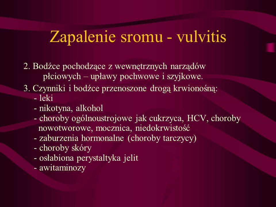 Zapalenie sromu - vulvitis