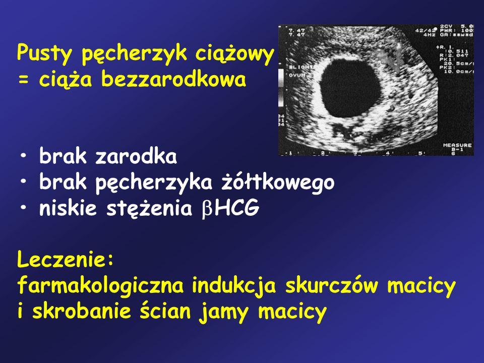 Pusty pęcherzyk ciążowy = ciąża bezzarodkowa