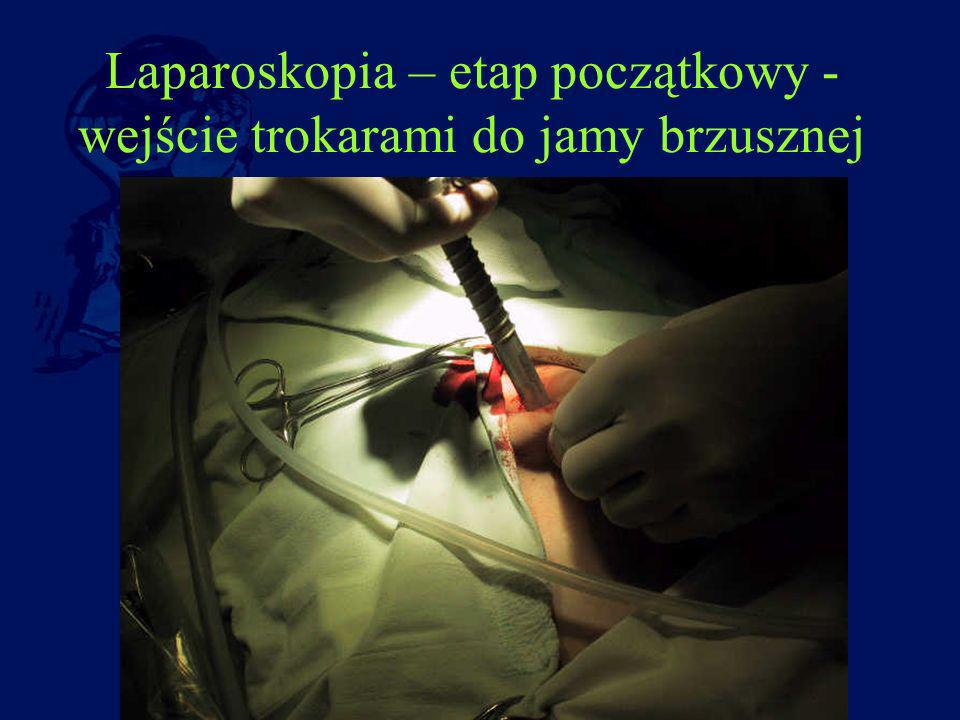 Laparoskopia – etap początkowy -wejście trokarami do jamy brzusznej