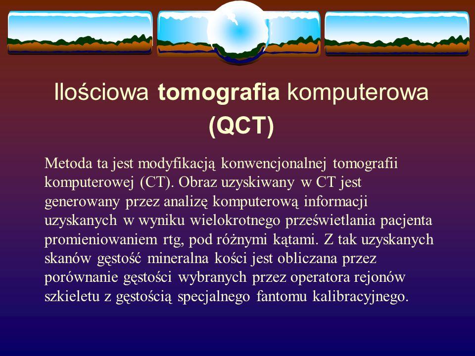 Ilościowa tomografia komputerowa (QCT)