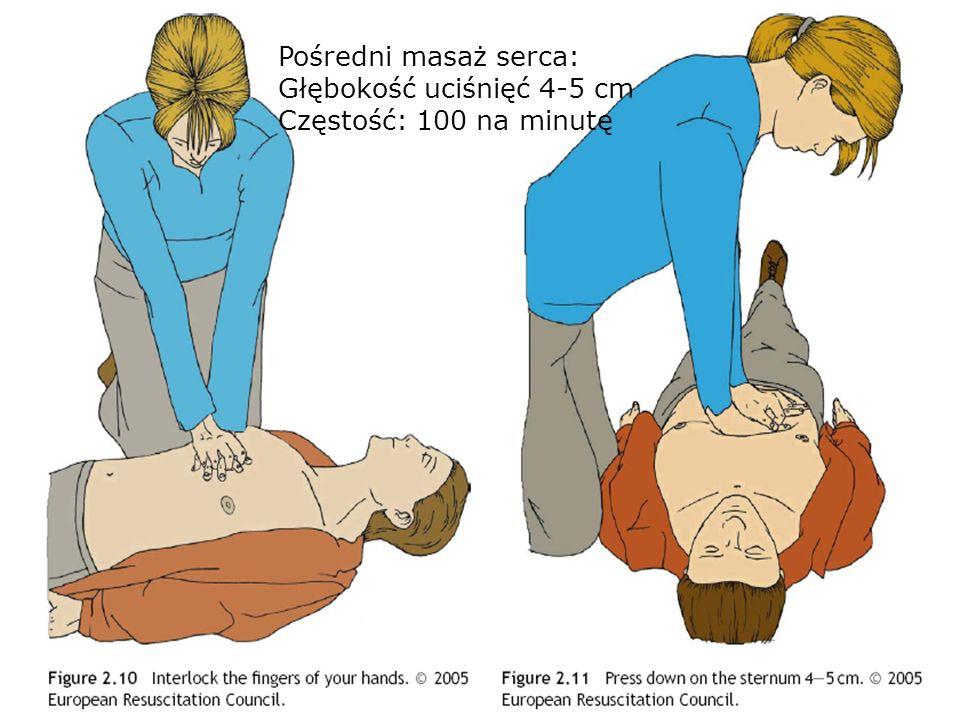 Pośredni masaż serca: Głębokość uciśnięć 4-5 cm Częstość: 100 na minutę