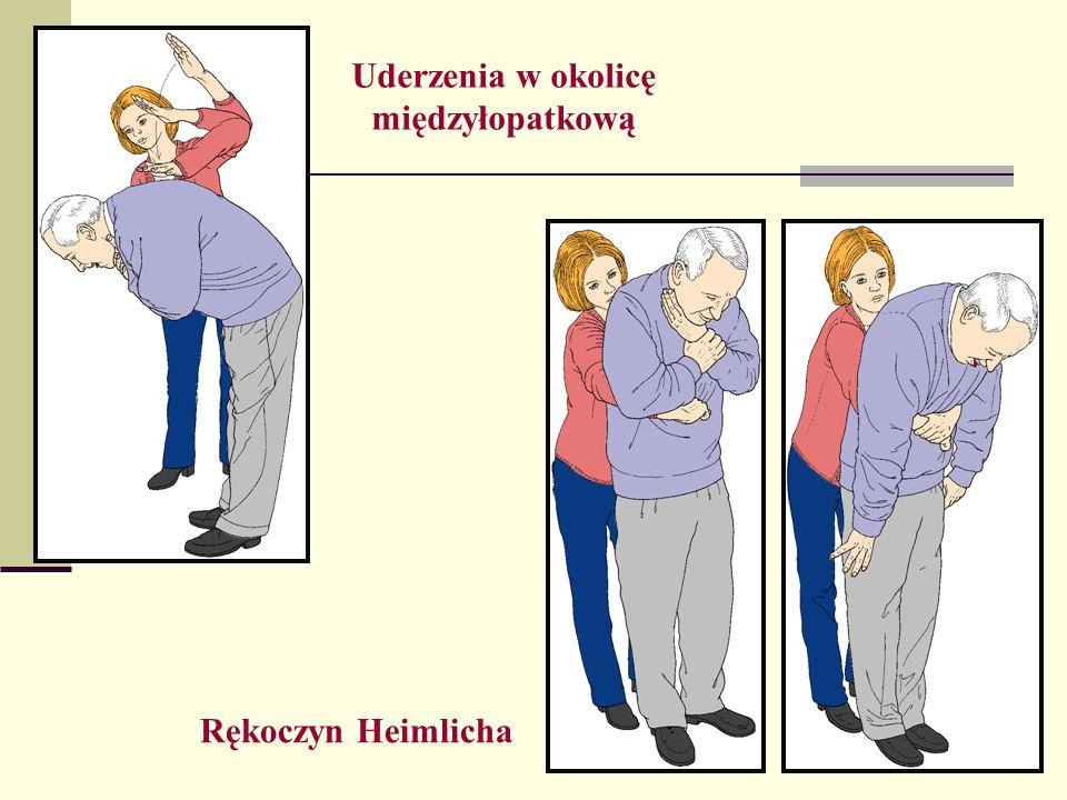 Uderzenia w okolicę międzyłopatkową