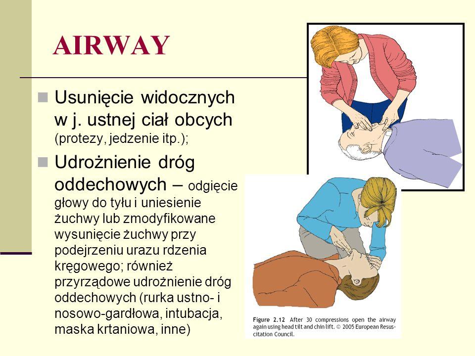AIRWAY Usunięcie widocznych w j. ustnej ciał obcych (protezy, jedzenie itp.);