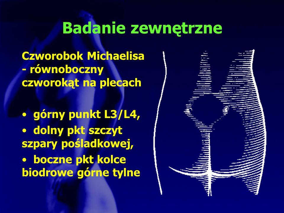 Badanie zewnętrzne Czworobok Michaelisa - równoboczny czworokąt na plecach. górny punkt L3/L4, dolny pkt szczyt szpary pośladkowej,