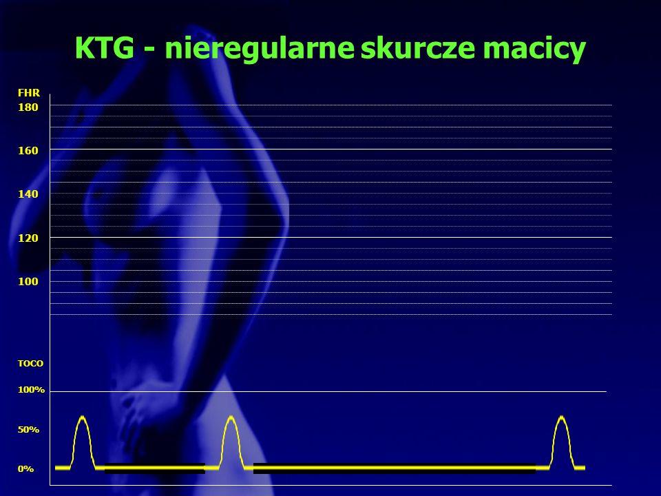 KTG - nieregularne skurcze macicy