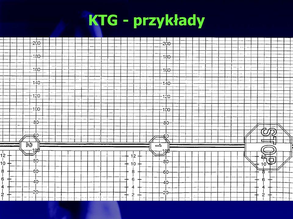 KTG - przykłady