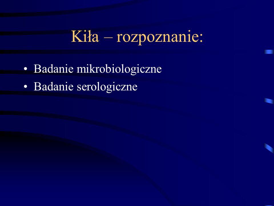Kiła – rozpoznanie: Badanie mikrobiologiczne Badanie serologiczne