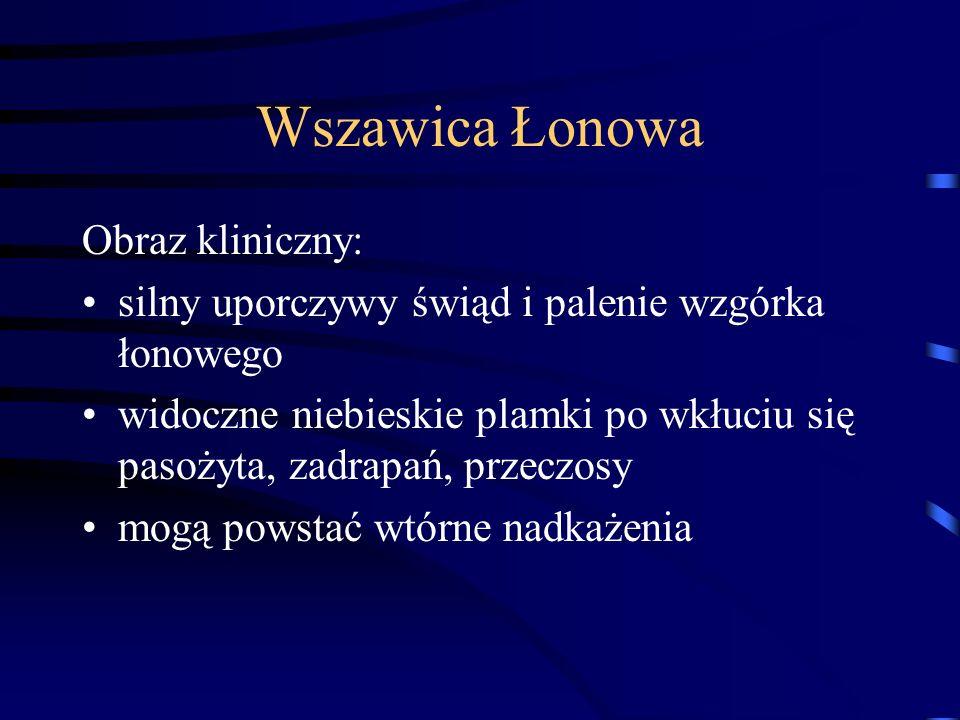 Wszawica Łonowa Obraz kliniczny: